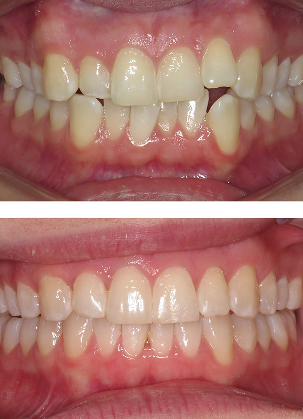 Rachel before and after adult Invisalign in Middlesbrough