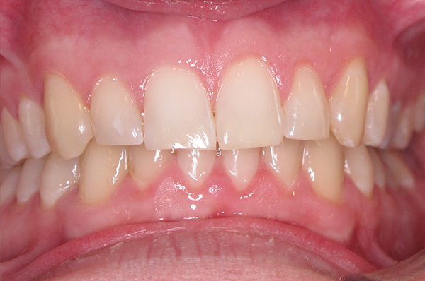 After Teeth Whitening in Middlesbrough