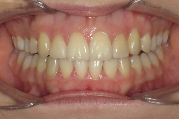 Amelia after Invisalign teen in Middlesbrough
