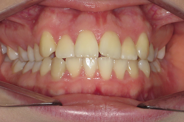 Amelia before Invisalign teen in Middlesbrough