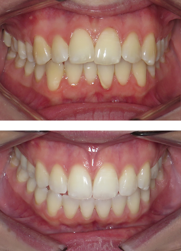 Christianne before and after adult Damon braces in Middlesbrough