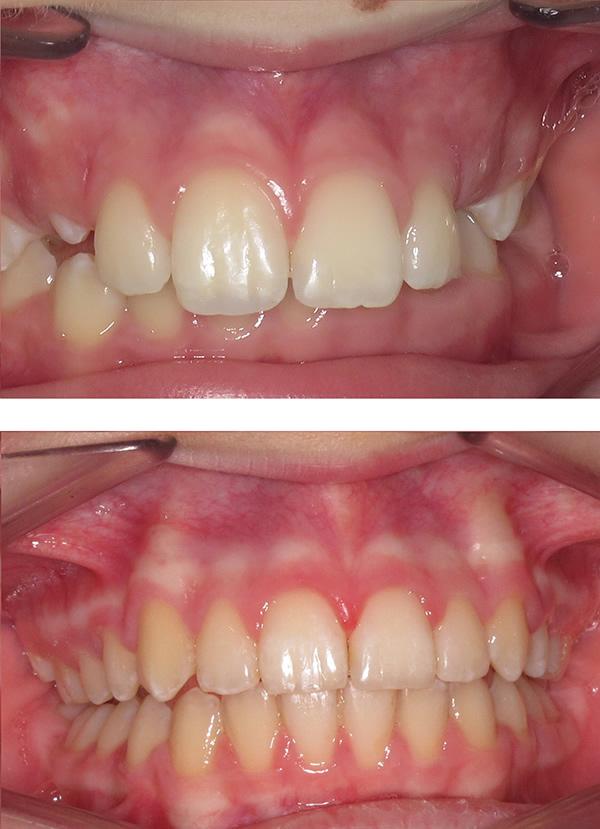 Teen twin block braces in Middlesbrough
