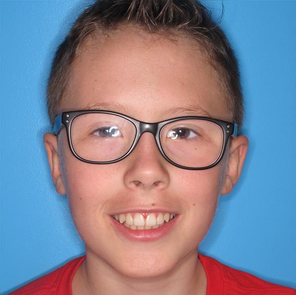 Louie teen twin block braces in Middlesbrough