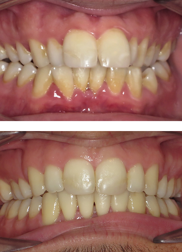 Adult white braces in Middlesbrough