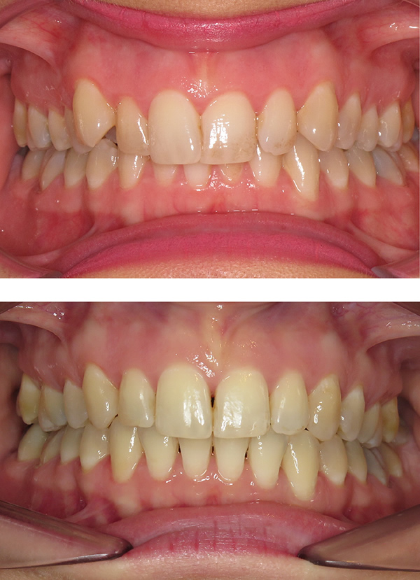 Adult metal braces in Middlesbrough