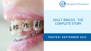 Adult Braces - The Complete Story